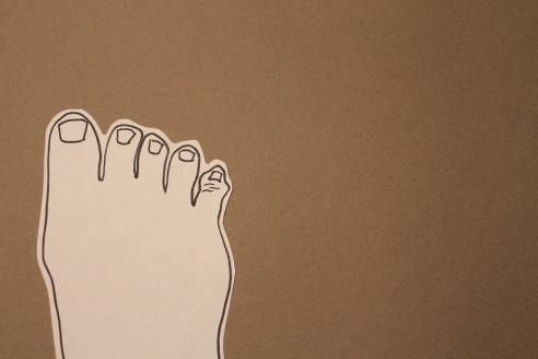 theuglyvolvo foot 2